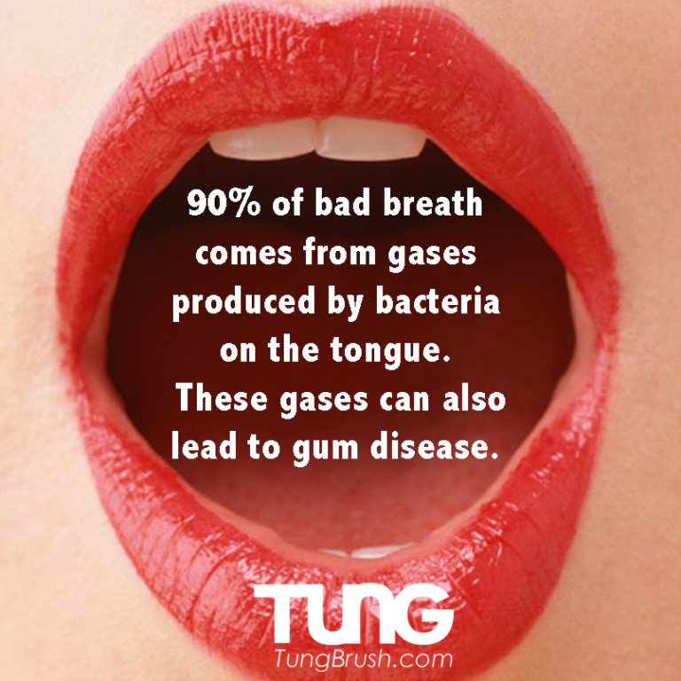 TUNG-bacteria